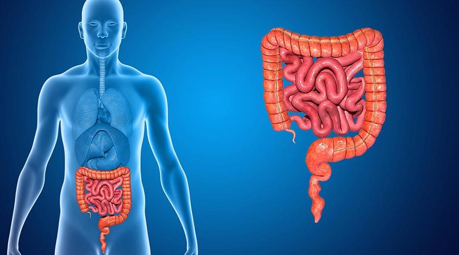 Har du et tarmproblem? Se en læge